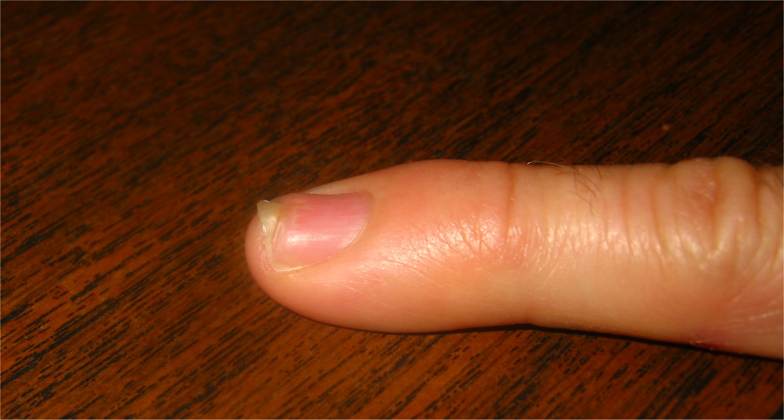 Fingernail recovering from smash - soul-amp.com