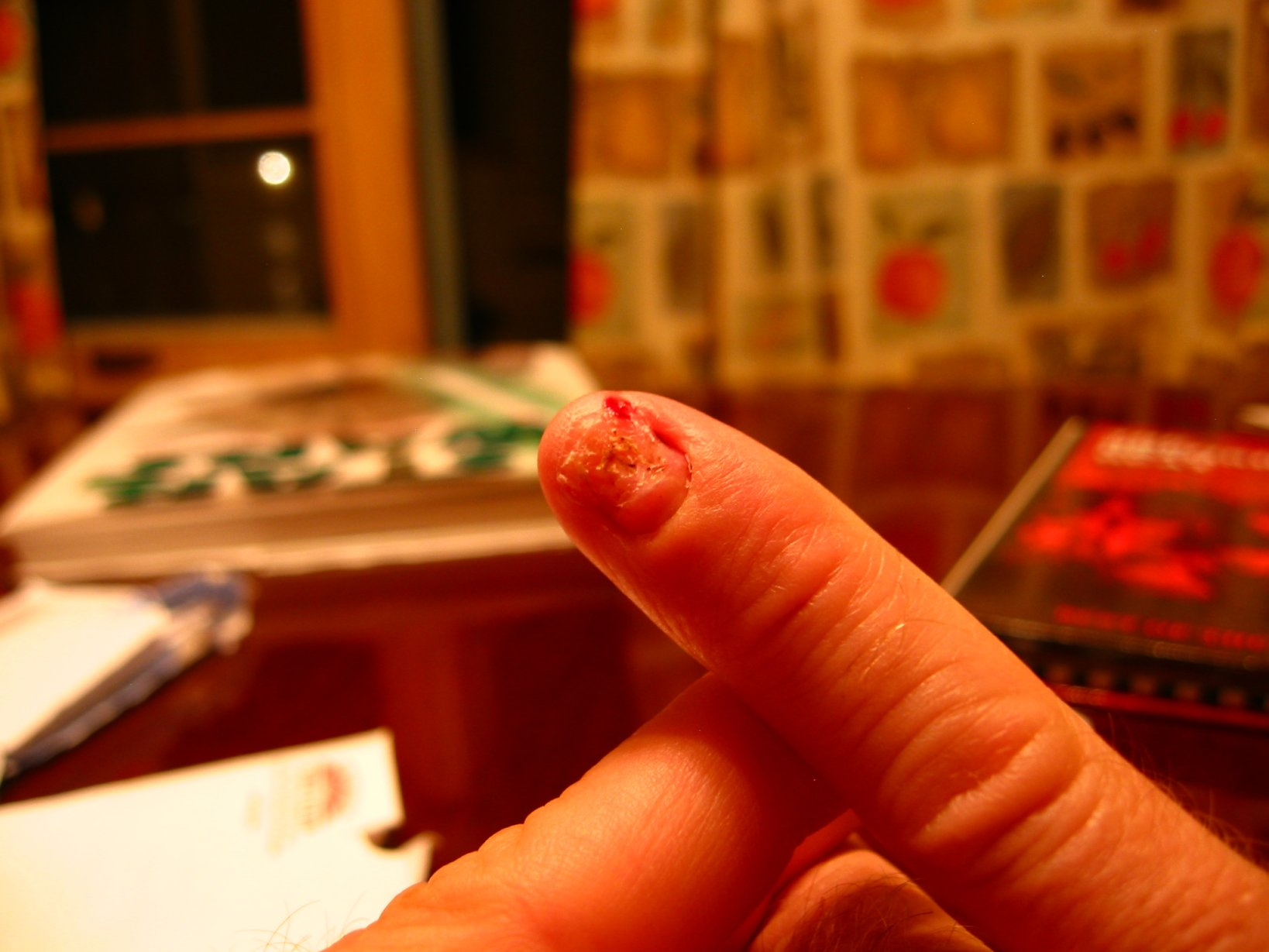 smashed finger just after pulling nail off - soul-amp.com