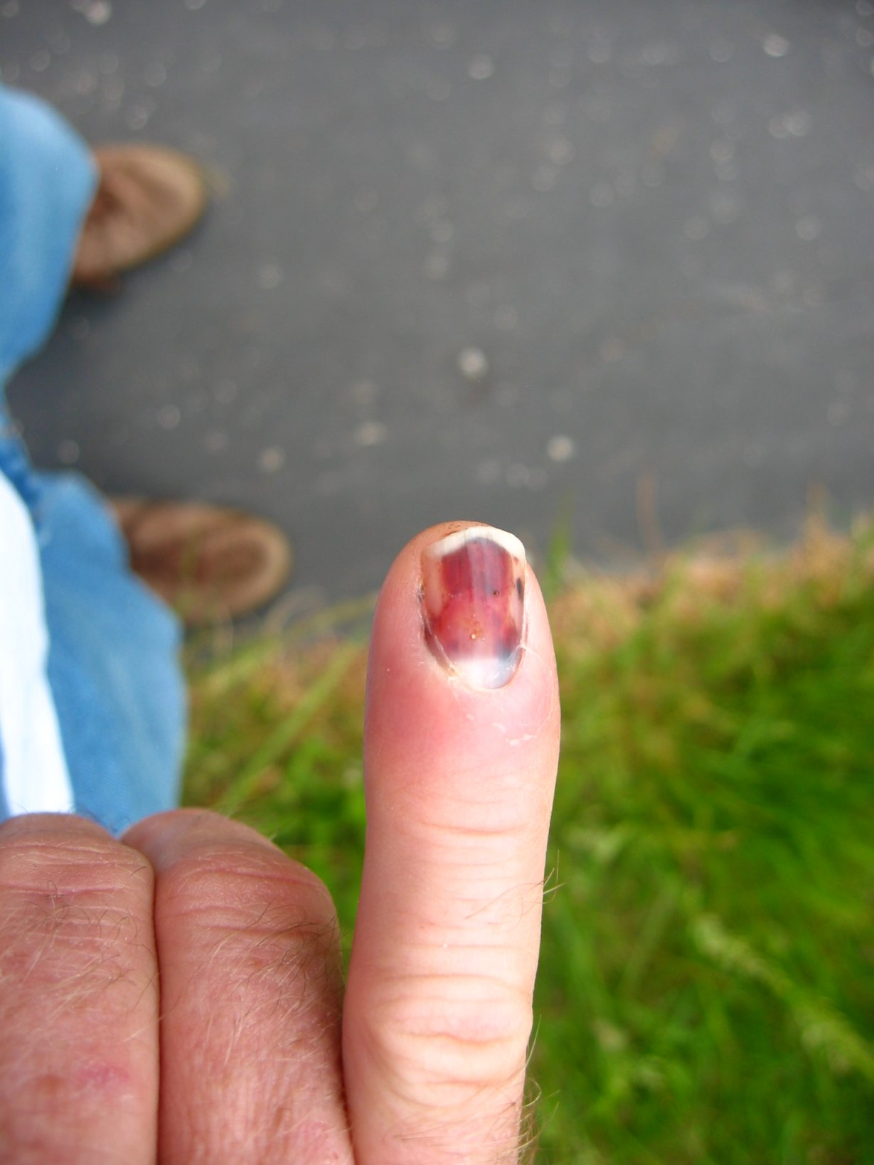 Smashed fingernail